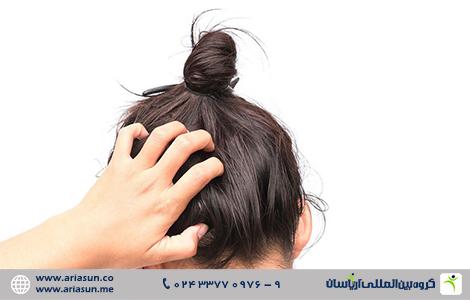 علل ریزش مو به دلیل خارش پوست سر